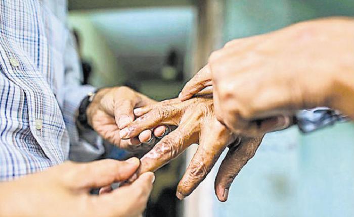 भारतसँग जोडिएका बस्तीमा कृष्ठरोगको जोखिम