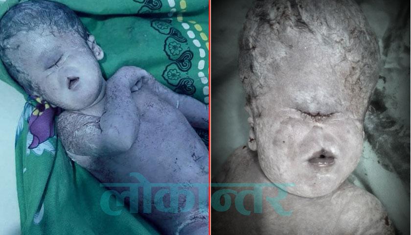 वीरगन्जमा जन्मियो अनौठो बच्चा, नाक छैन, आँखा एउटा मात्रै  (तस्बिरसहित)