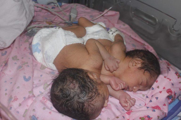 छाती र पेट जोडिएका जुम्ल्याहा शिशु जन्मिए