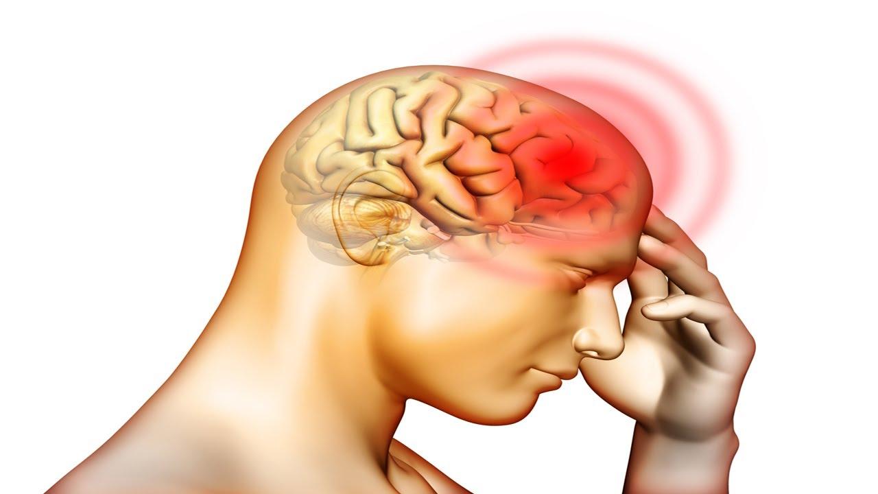 के हो मस्तिष्कघात, किन हुन्छ ?