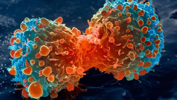 क्यान्सर रोगीलाई आवश्यक पर्ने झोला स्वदेशमै उत्पादन गर्न माग