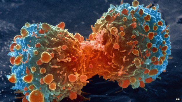 'शुरुमै रोग पत्ता लगाउन सके क्यान्सलाई जित्न सकिन्छ'